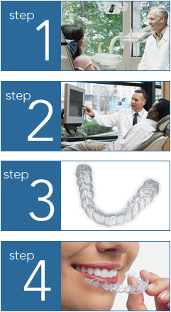 Invisalign at Andy Bennion Orthodontics, Eugene and Junction City, Oregon